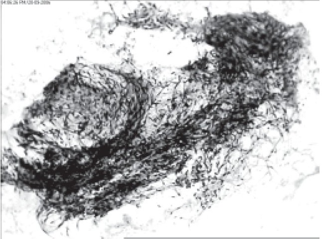 Figure 1 : Smear showing whorling and palisading of spindle cells (H&E, x 200).