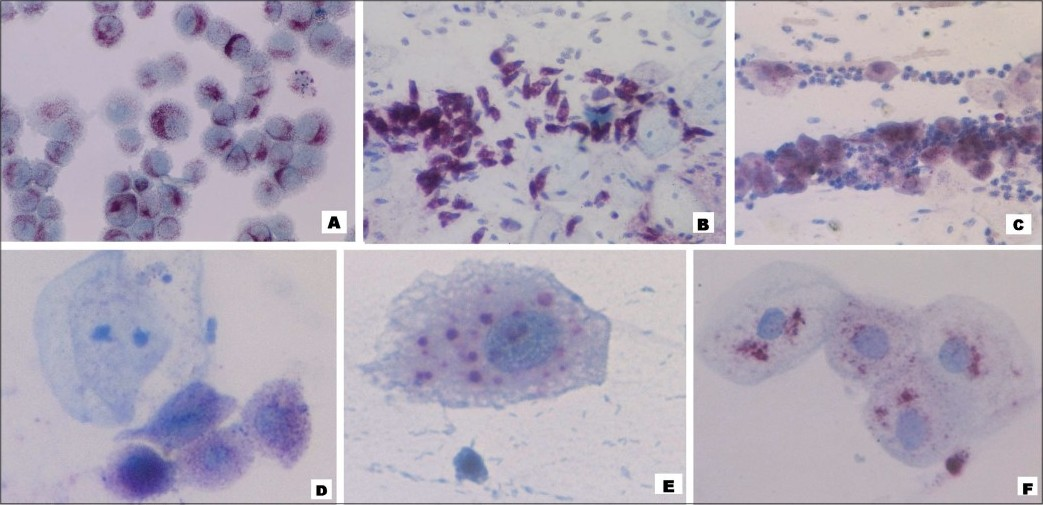 Figure 1: Photomicrographs showing red cervical acid phosphatase acti vity in HeLa cells serving as positi ve control (A; �0), endocervical cells of cervical