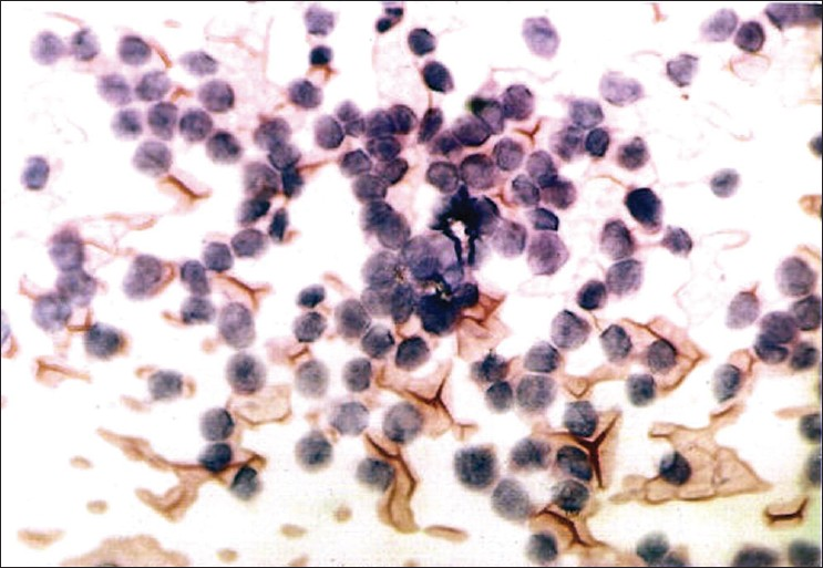 Figure 1: Photomicrograph of an FNA smear shows uniformly sized, hyperchromatic cells forming rosettes at places—Case 1 (H and E, x400)