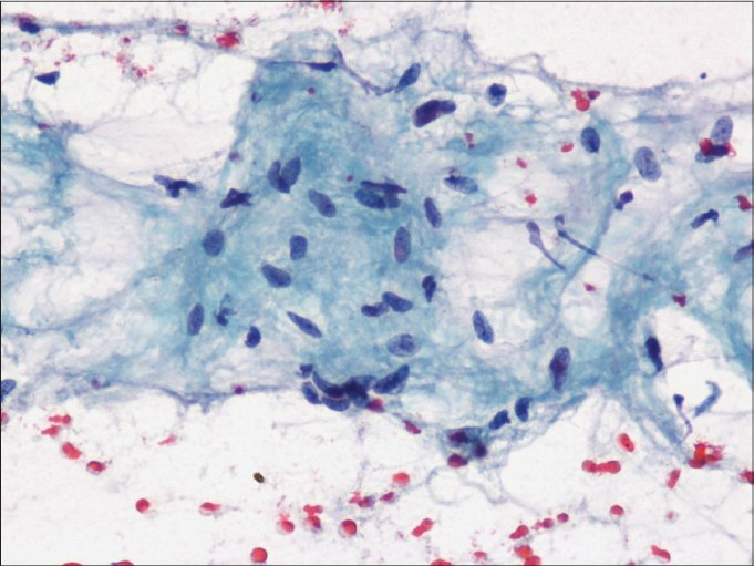 Figure 3: Aspirate from fibromatosis showing sparse cellularity and collagenous stroma (Pap, x400)