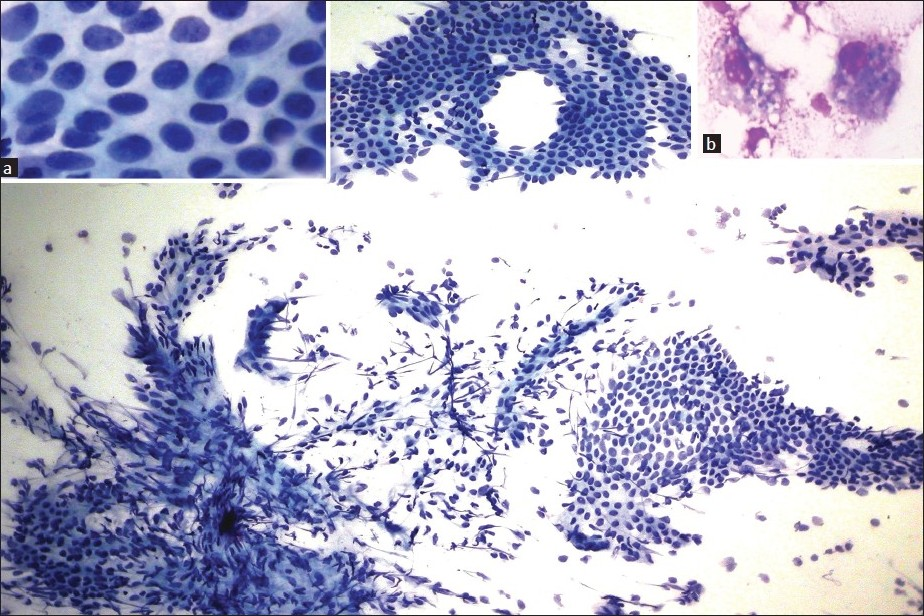 Figure 1 :Microphotograph showing monolayered sheets of endometrial glandular cells and spindled stromal cells with capillary meshwork (Pap, ×100). Inset: (a) Epithelial cells (Pap, ×400) (b) hemosiderin laden macrophages (Leishman's, ×400)