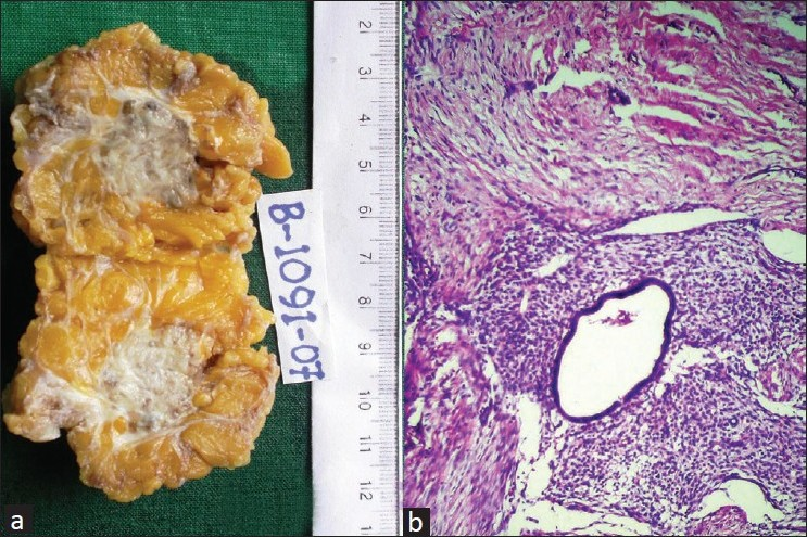 Figure 2 :(a) Gross photograph showing grey-white fibrous area with tiny cysts in the subcutaneous fat (b) microphotograph showing endometrial glands with adjacent stroma in a fibrocollagenous background (H and E, ×100)