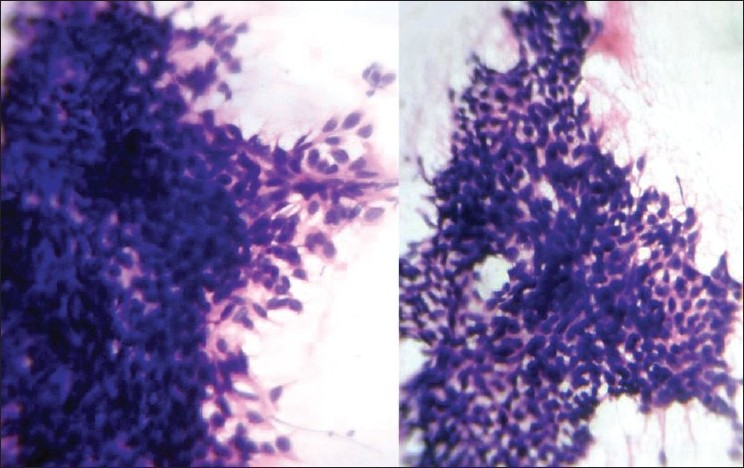 Figure 3 :Smears showing uniform basaloid cells arranged as nests and adenoid pattern (H and E, ×400)