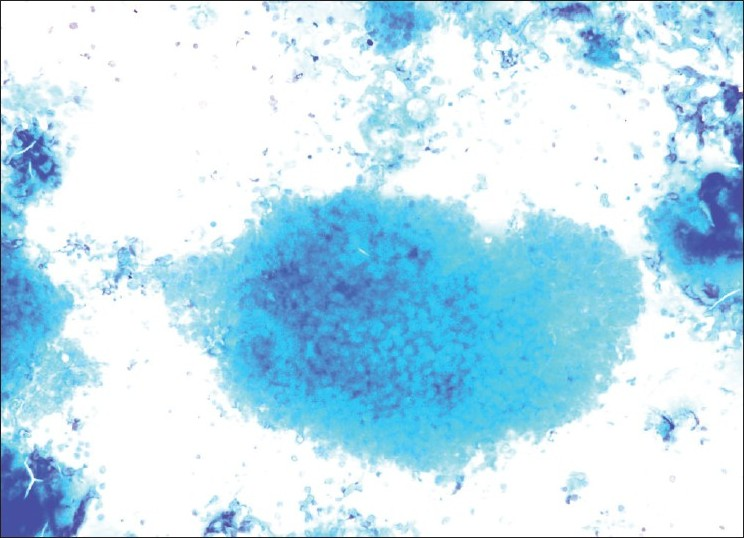 Figure 3: Cluster of shadow cells showing abundant cytoplasm with distinct cell borders and central unstained area (MGG, ×200)