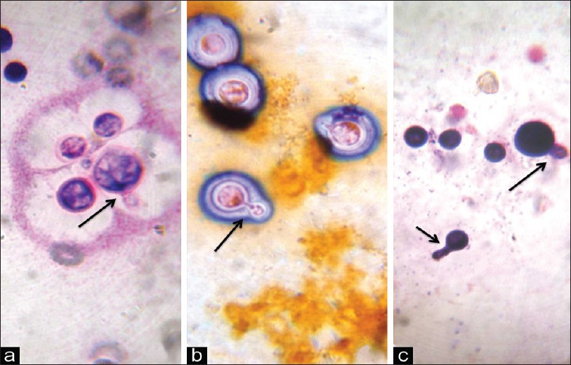 Figure 1: Cytologic preparation of pleural fluid showing numerous narrowly budding (arrow) cryptococcal yeast [a. Leishman stain, b. Papanicolaou stain, c. Gram stain, ×1000]