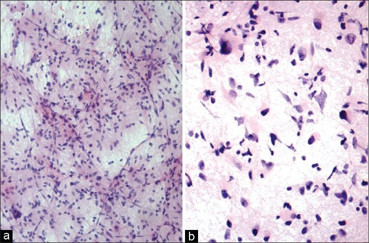 Figure 2: (a) Diffuse fibrillary astrocytoma: Elongated astrocytic cells in mostly dense meshwork of fibrillary processes (H and E, ×100). (b) Diffuse fibrillary astrocytoma: Astrocytic cells with irregular hyperchromatic nuclei and up to moderate pleomorphism, along with gemistocytic forms in a meshwork of fibrillary processes (H and E, ×200)