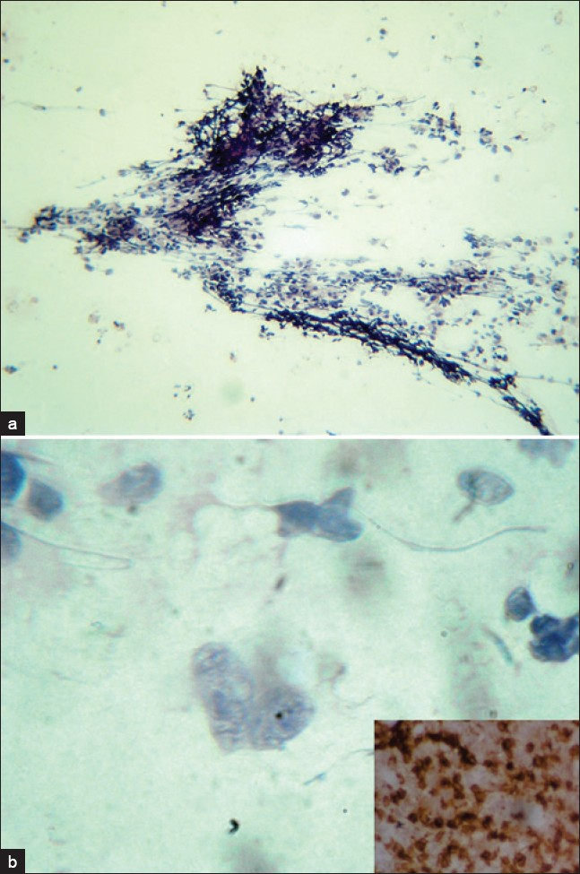 Figure 1: (a) Cytology smear showing dispersed population of lymphoid cells admixed with fibrous stroma (Pap, ×40). (b) Cytology smear showing atypical lymphoid cell with cerebriform nucleus and prominent nucleoli (Pap, ×1000). Inset shows CD4 positivity in tumor cells (IHC, ×400)