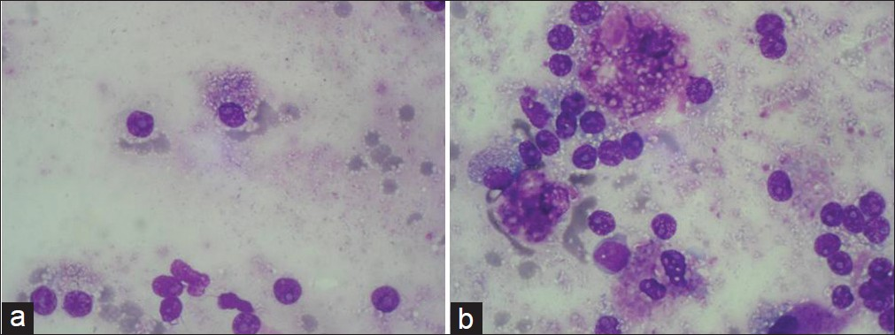 Figure 1: (a) Smears showing plasmablasts with prominent nucleoli (Giemsa, × 1000); (b) Smear showing Mott cells (Giemsa, × 1000)