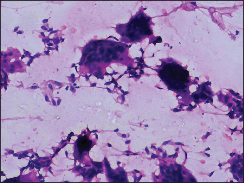 Figure 1: Smears are cellular, showing scattered spindle-shaped cells admixed with giant cells (H and E, ×200)