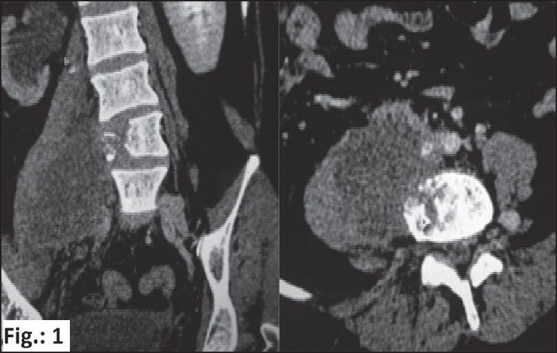 Figure 1: CT scan showing large collection of pus along with bone destruction