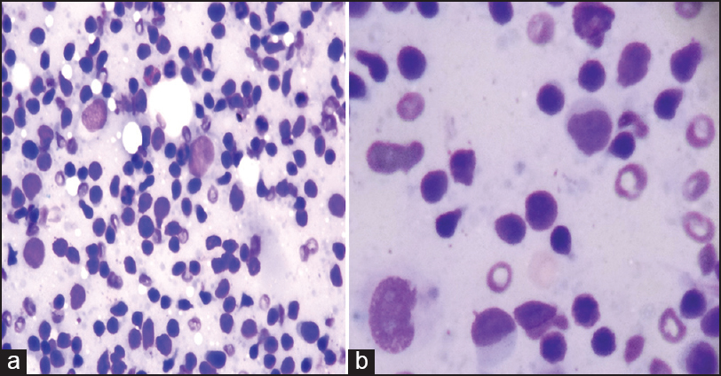 Figure 2: (a) Cytology of DLN showing characteristic histiocytes and eosinophil. (MGG, ×100) (b) Cytology of cervical lymph node showing monocytoid blast plasma cells. (MGG, ×400)