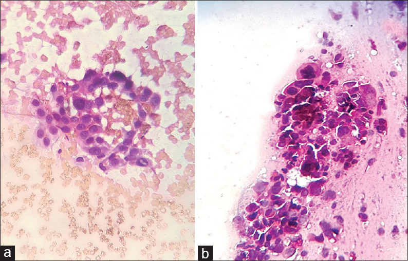 Figure 1: a) Photomicrograph of conventional Pap smear diagnosed as HSIL showing red blood cells in the background (Papanicolaou stain, ×400) and (b) photomicrograph of rehydrated air-dried Pap smear of same case (a) diagnosed as squamous cell carcinoma showing lysis of red blood cells (Papanicolaou stain, ×400)