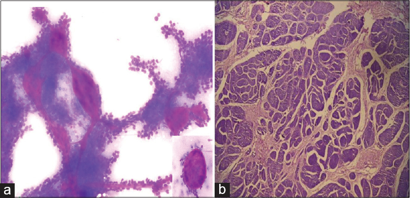 Figure 2: Cylindroma (a) fine-needle aspiration smears showing papillary clusters of basaloid cells with an inset showing presence of hyaline globule (Giemsa stain ×100). (b) Histopathological image showing compact nests of basaloid cells forming jigsaw puzzle (Hematoxylin and Eosin, × 400)