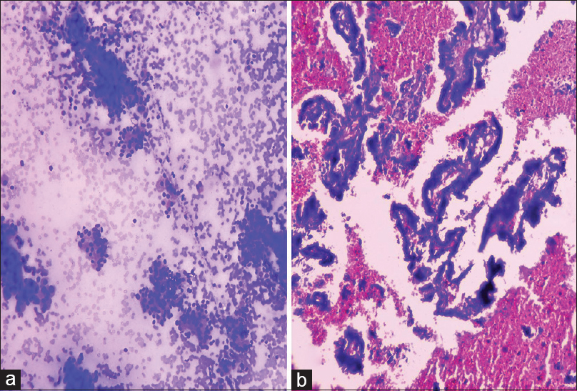 Figure 2: (a) FNA smear of adenocarcinoma showing high cellularity with presence of acini and papillae (MGG stain, ×100). (b) Corresponding cell block preparation showing high cellular yield with preserved well-formed papillae (H and E stain, ×100)