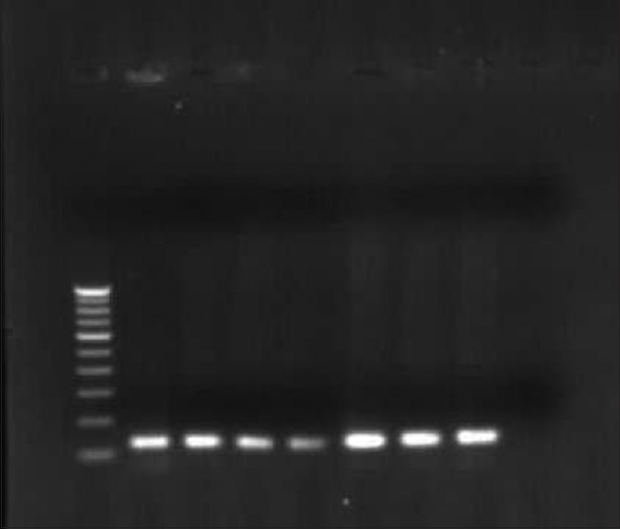 Molecular genetic study to detect prevalence of high-risk human