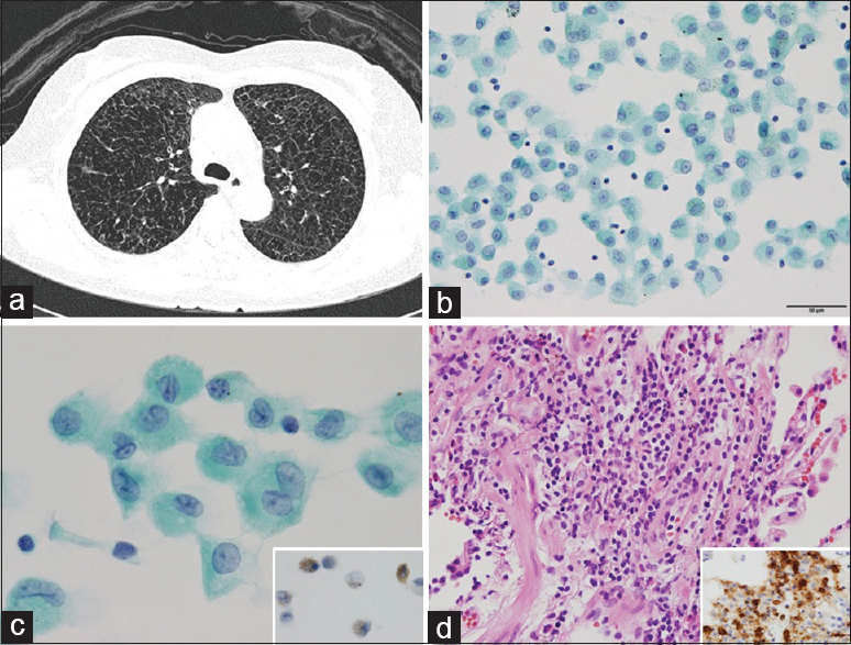 Figure 1: Pulmonary Langerhans cell histiocytosis. (a) Multiple cysts on chest computed tomography. (b) Hypercellular smear (Papanicolau stain, ×400). (c) Irregular nuclear groove with abundant cytoplasm of Langerhans cells (Papanicolau stain, ×1000) (insert. CD1a). (d) Infiltration of Langerhans cells with lymphocytes (insert, CD1a)