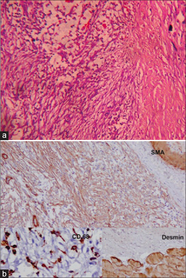 Figure 2: (a) Biopsy showing oval to spindle shaped cells in short fascicles and extravasated erythrocytes (Hematoxylin and eosin, ×100). (b) Nodular fasciitis showing positive immunostaining for smooth muscle actin (SMA), ×200 and CD 68, ×400, while Desmin, ×200 was negative