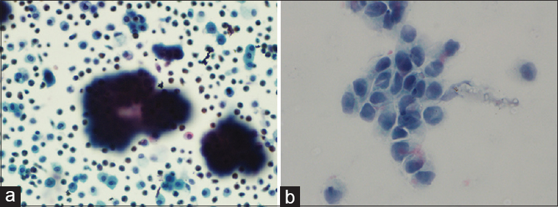Figure 2:(a) Liquid-based cytology smear of an adenocarcinoma (Papanicolaou's stain ×440). (b) Indigenous modified Millipore cytology smear of the same (Papanicolaou's stain ×440)